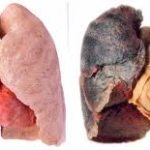 Diseased Lungs
